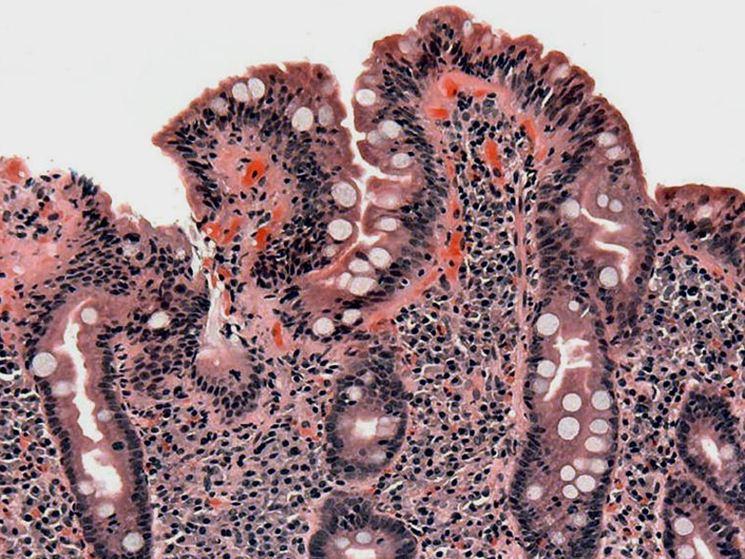 Analisi mucosa duodenale