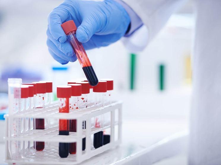 Materiali per esame del sangue