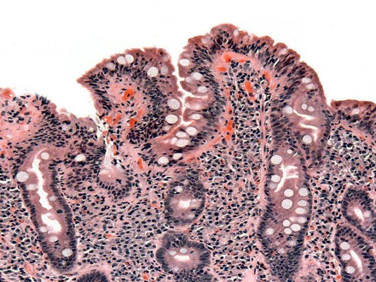 Esempio biopsia duodenale