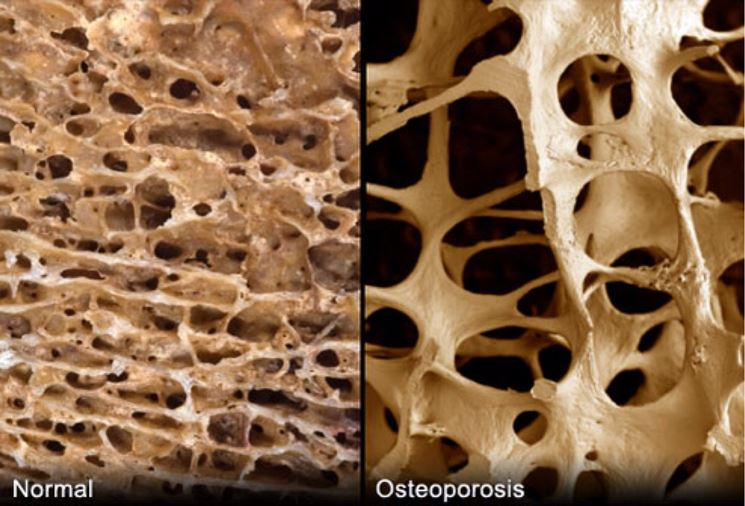 Danni da osteoporosi